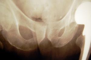 Øvelser til at strække hofteled