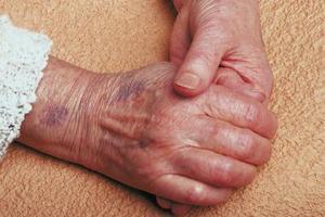 Tegn og symptomer på slutstadiet myelom