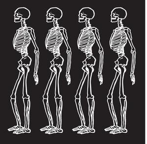 Hvad er fordelene ved motion på skelettet?
