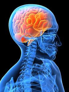 Symptomer på en hjerneblødning