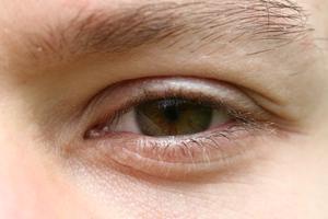 Ridsede øjensymptomer