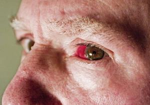 sprængte blodkar i øjet
