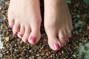 Hvordan at slippe af med dybt sprukne fødder