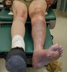 symptomer på blodprop i benet