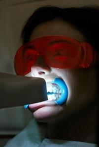 Sådan Clean misfarvede tænder fra at ryge
