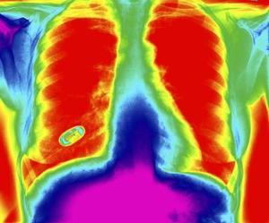 Faktorer, der påvirker iltmætning