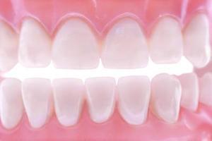 Hvordan at blege tænder før & efter tandproteser