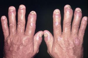 Cure for psoriasis i neglen