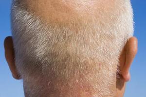 Hvad er årsagen en Smelly Scalp?