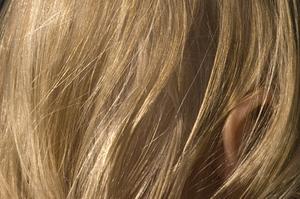 Betændelse i hårsække