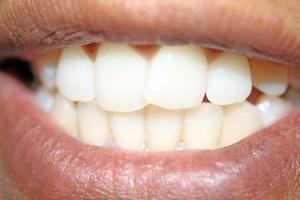 Hvilke fødevarer forårsage gule tænder?