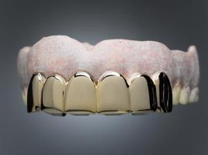 DIY: Dentures