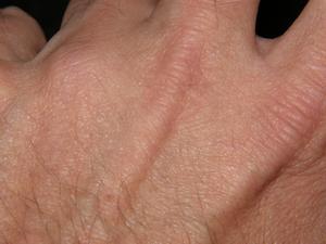 Tegn og symptomer på Morgellons sygdom