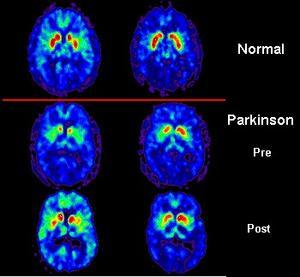 Tests for Parkinsons sygdom