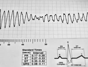 Årsager til hjertebanken eller flagrer