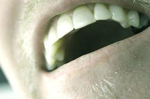 Hjem afhjælpe for en Absessed Tooth