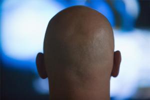 Sådan bruges Rosemary til behandling af hårtab