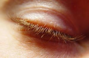 tør hud på øjenlåg