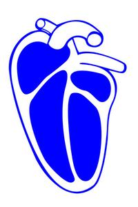 Hvad er hjertestop?