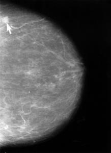 Hvilken type brystkræft er forbundet med brystvorten udledning?