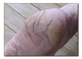 Retsmidler for revner i fødderne