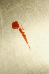 fjerne blodpletter