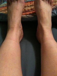 Hævede ben kløe