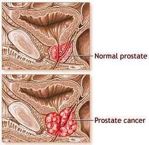 Bivirkningerne af strålebehandling for prostatakræft
