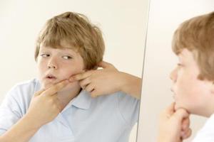 Acne ar makeup til mænd